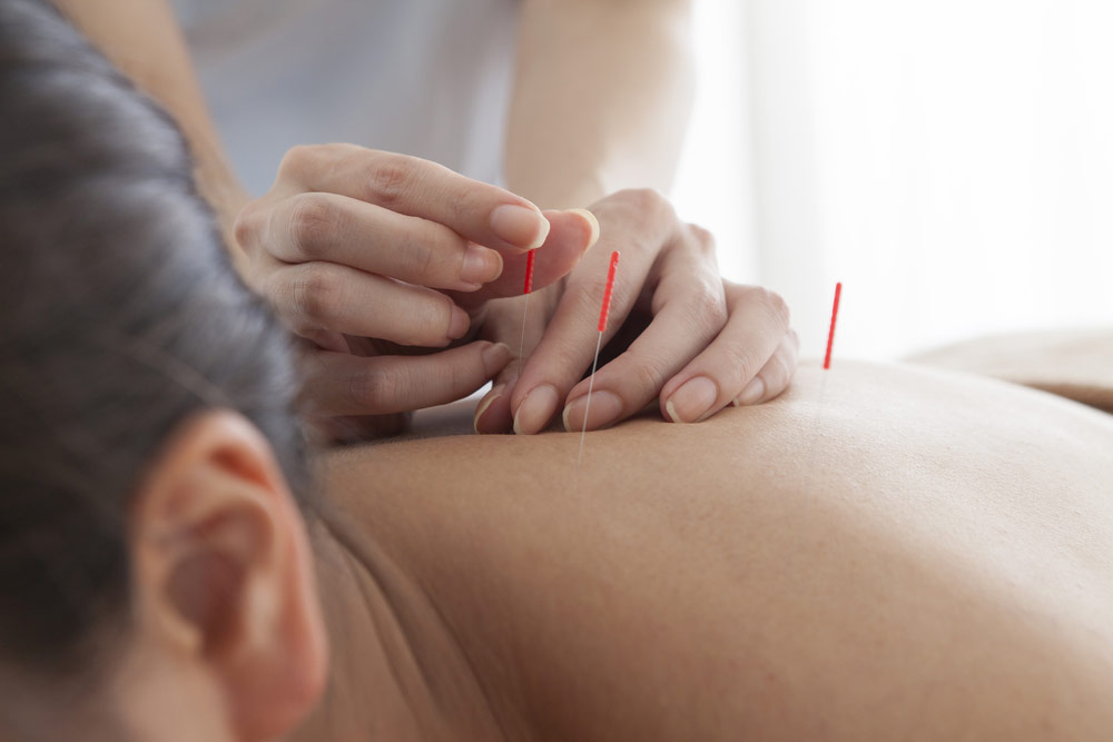 Acupuncture studies show possible positive results